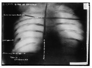 X-Ray of Roosevelt's ribcage showing the bullet at lower left